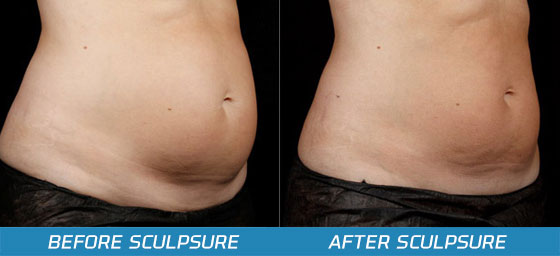 SculpSure Before and After Pictures - LaserTheFat.com
