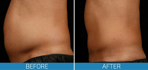 SculpSure-Before-After-Photo-Gallery